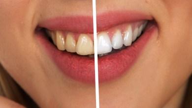 Photo of Kdaj so moji zobje dovolj umiti?