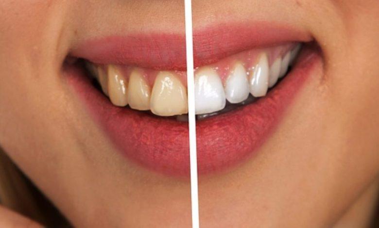 dlesni, medzobne ščetke, ustno higieno, ustna higiena, Zdrave dlesni,
