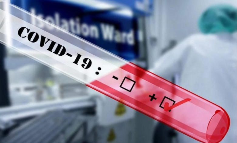 Melania, samotestiranje, test, koronavirus, covid-19, testov, Testi