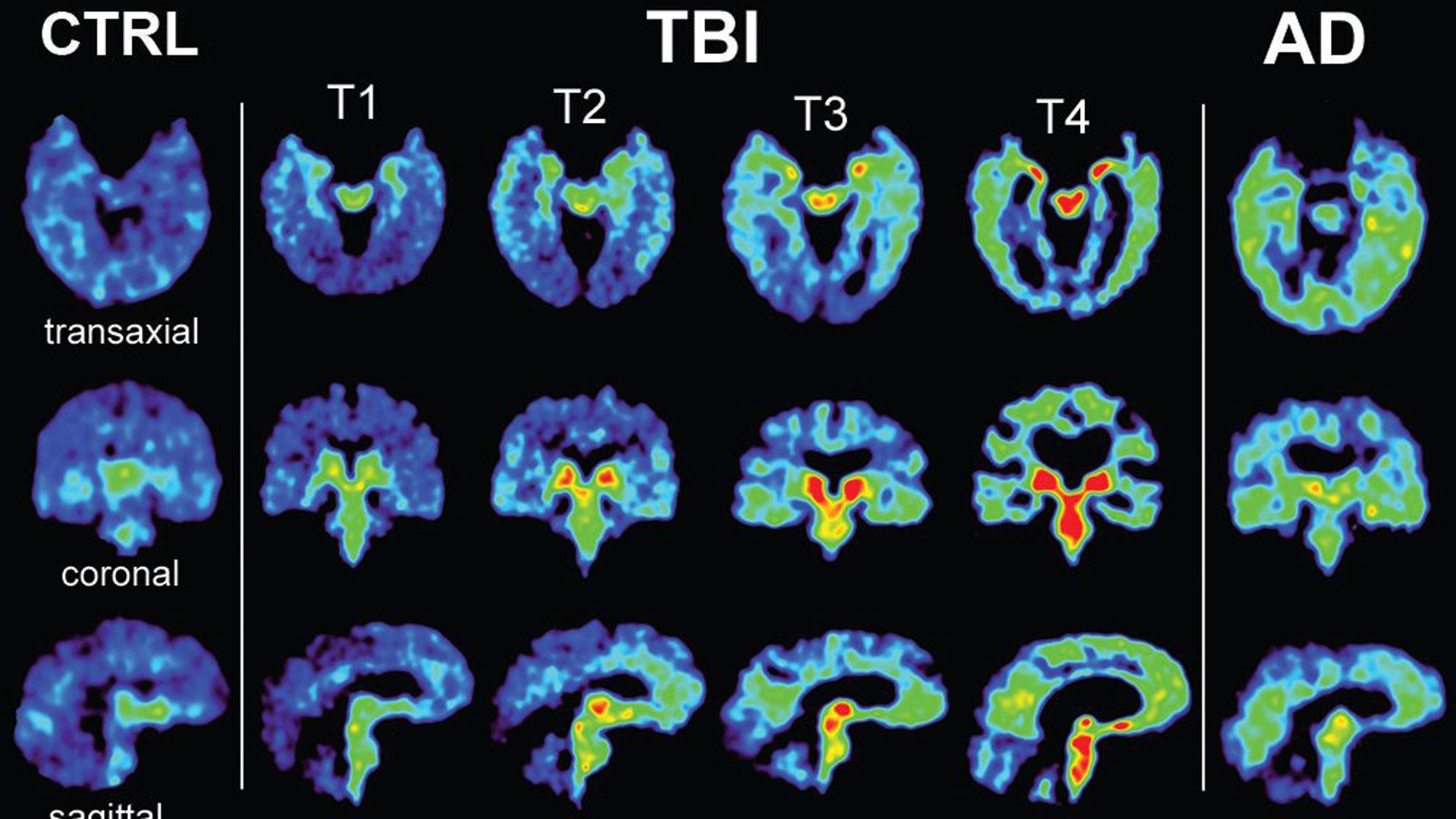 brain imaging showing CTE36200936-159532