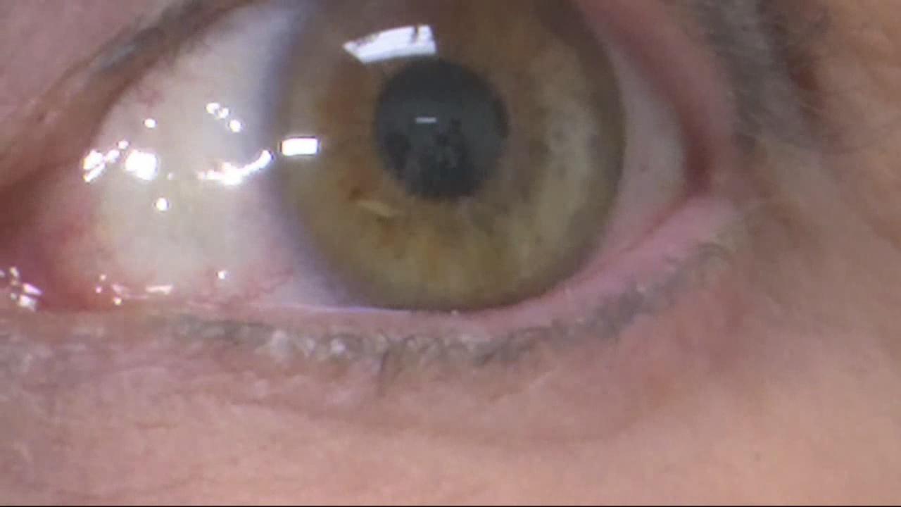 rare eye cancer with ties to auburn_1518275937405.jpg.jpg