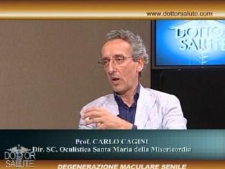 Degenerazione emaculare senile, ne abbiamo parlato con il prof Carlo CAGINI