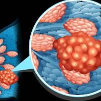 Tumori, scoperta firma molecolare, pazienti possono evitare chemioterapia