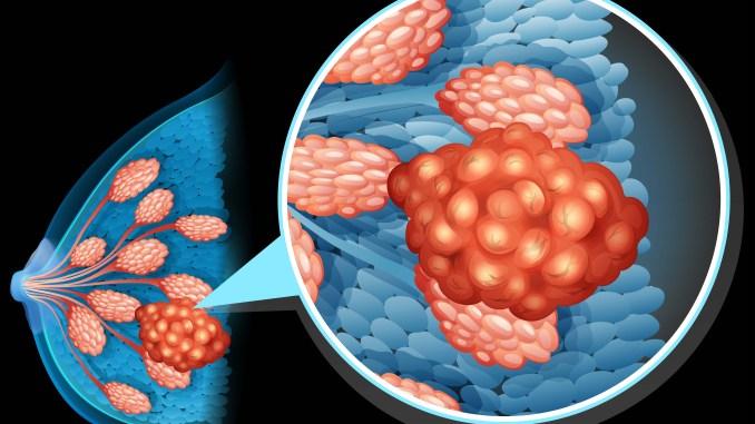 Tumori:scoperti meccanismi responsabile di resistenza cancro al seno