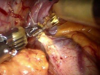 Acalasia esofagea e miotomia per via laparoscopica o robotica integrata