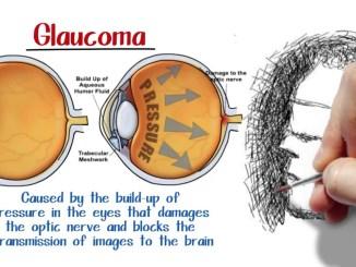 Glaucoma e rischio cecità nuova ruolo terapeutico da neuroprotezione