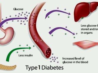 Diabete tipo 1, ricercatori italiani scoprono molecole che innescano malattia