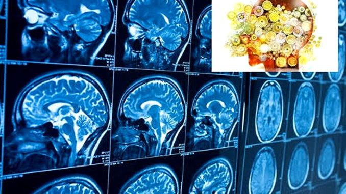 Neuroriabilitazione ospedale Foligno capofila su ricerca nazionale