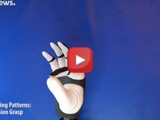 La mano bionica più avanzata al mondo forse impiantata in Italia