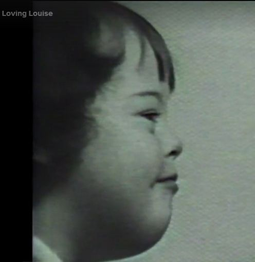 """Louise is a mongoloid child"""" who became a loquacious adult"""