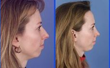 rhinoplasty procedure