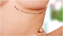 Breast Augmentation Incision