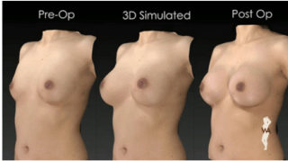 3D Imaging for Breast Augmentation