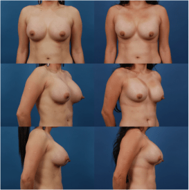 Patients With Nipples Stretching Upwards After Selecting Breast Implants that are Too Lare