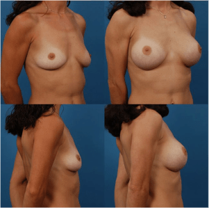 Silicone Breast Implant Size Patient 2