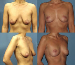 Before and After a Breast Lift at Dr. Adams Plastic Surgery in Dallas