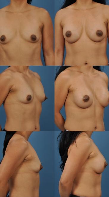 Breast Augmentation- Case 33