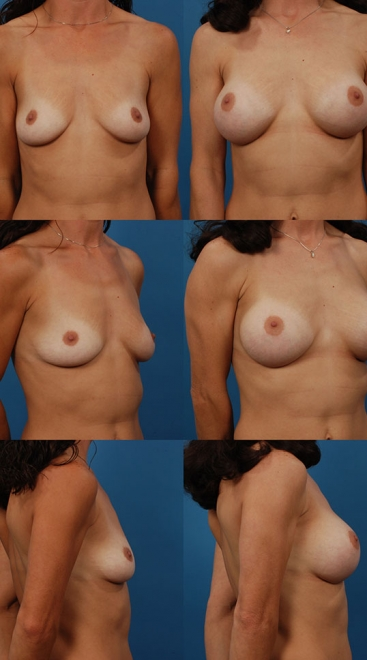 Breast Augmentation – Case 13