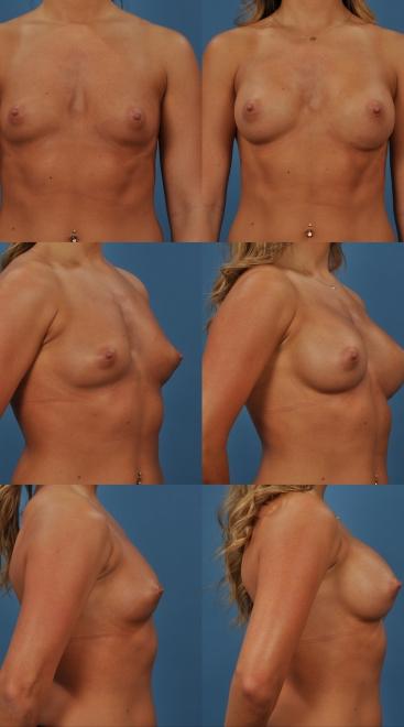 Breast Augmentation- Case 35