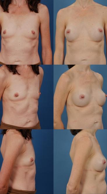 Breast Augmentation Silicone- Case 22