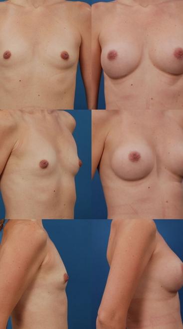 Breast Augmentation- Case 50