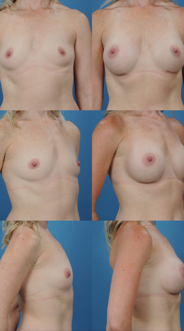 Breast Augmentation- Case 58