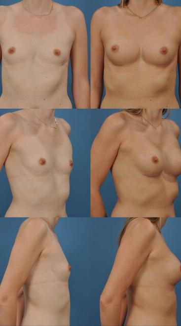 Breast Augmentation- Case 55