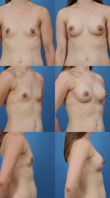 Breast Augmentation- Case X