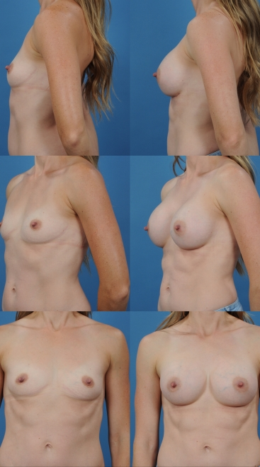 Breast Augmentation- Case 38