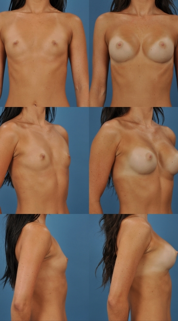 Breast Augmentation- Case 26