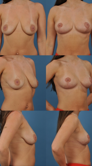 Breast Lift with Placement of Supportive Scaffold- Case F
