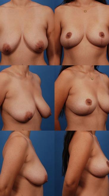 Breast Lift Case D