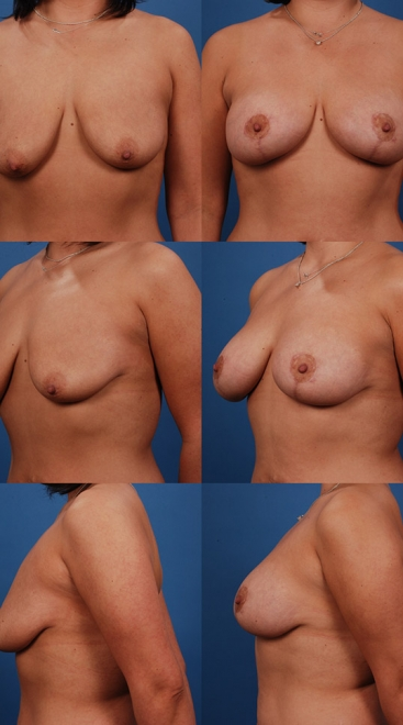 Augmentation with Breast Lift- Case 8