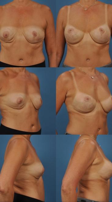 Secondary Breast Augmentation Case L