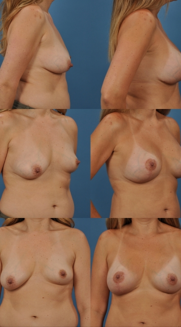 Augmentation with Breastlift Asymmetry- Case A