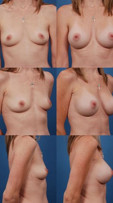 Breast Augmentation – Case 15
