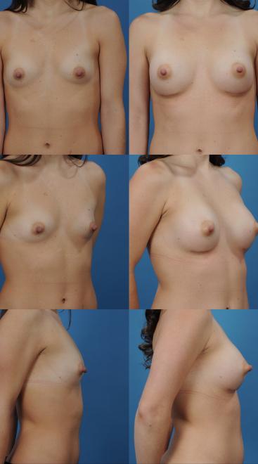 Breast Augmentation- Case 59