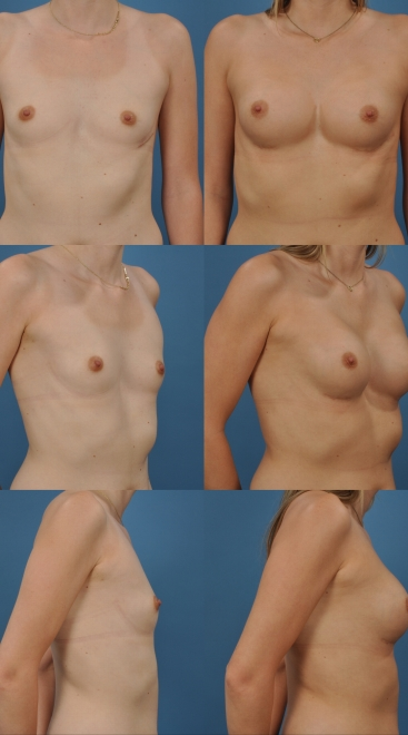 Breast Augmentation with Asymmetry- Case H