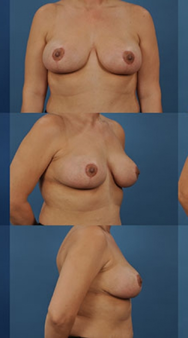 Breast Lift with Placement of Supportive Scaffold- Case D