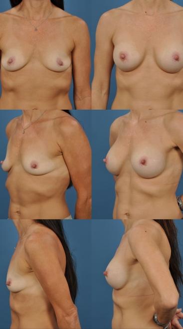 Breast Augmentation- Case 2