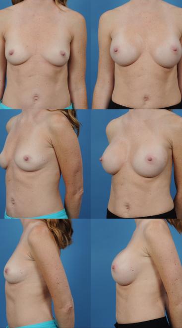 Breast Augmentation- Case 63
