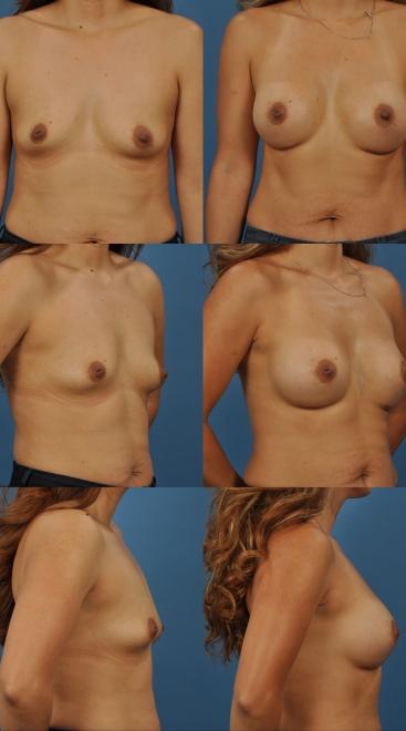 Breast Augmentation- Case 34