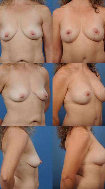 Augmentation with Breast Left- Case 16