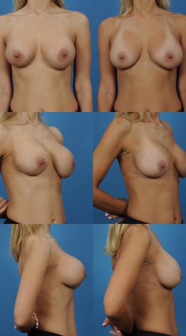 Implant Exchange with Capsulectomy- Case 12