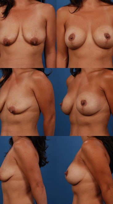 Augmentation with Breast Lift- Case 5