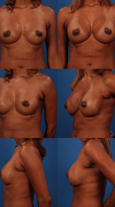Revision Breast Augmentation- Case T