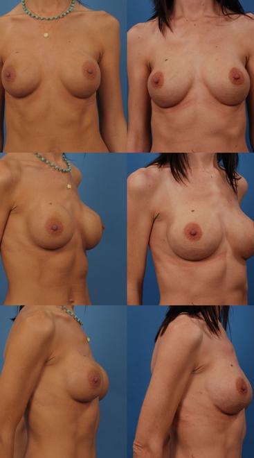 Breast Augmentation Revision- Case W