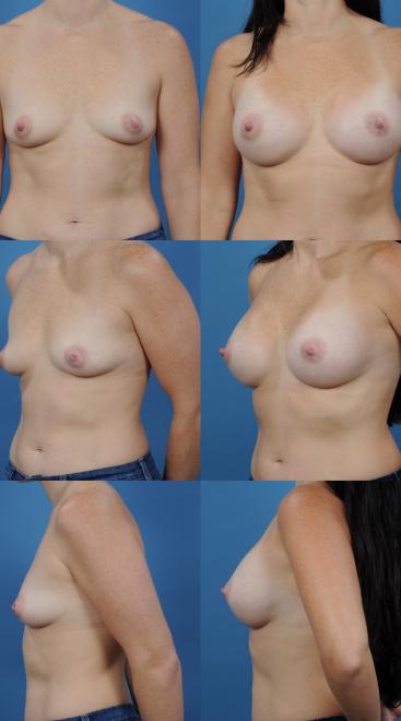 Breast Augmentation- Case 25