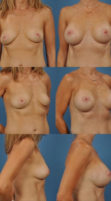 Breast Augmentation with Nipple Repositioning Case E