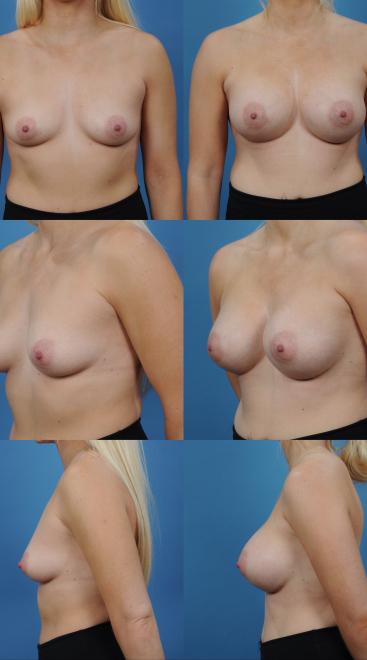 Breast Augmentation- Case 57